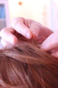 Acupuncture for migraine
